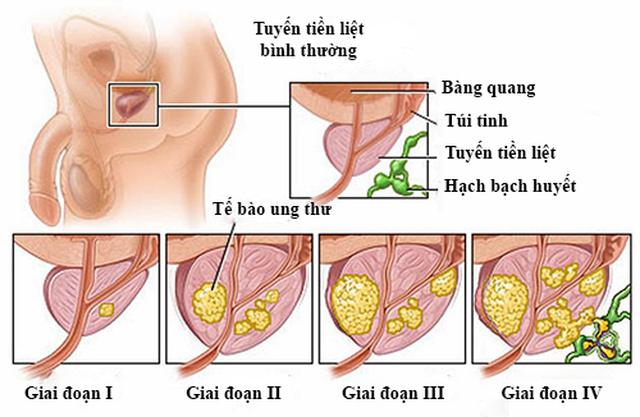 Yếu tố nguy cơ của ung thư tuyến tiền liệt - 2