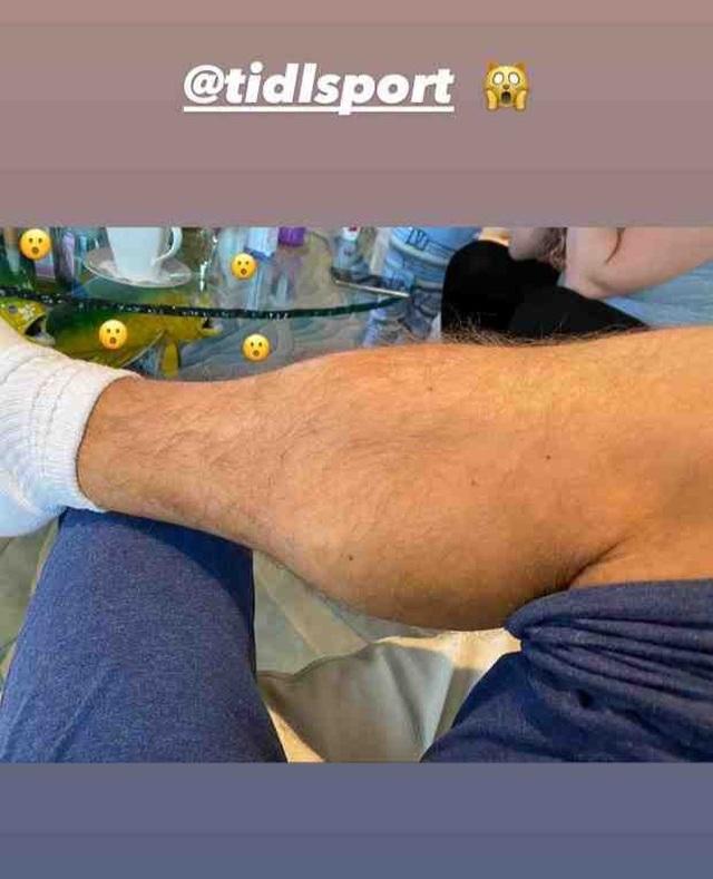Gã điên McGregor khoe chân sưng vù sau khi bị hạ knock-out - 1