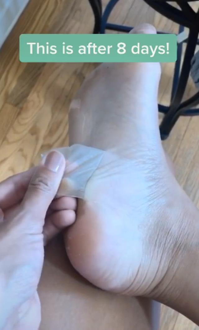 Kinh hãi với trào lưu lột da chân trên Tik Tok - 3