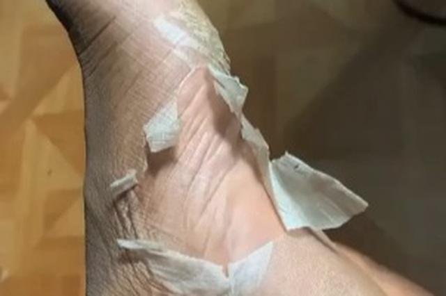 Kinh hãi với trào lưu lột da chân trên Tik Tok - 2