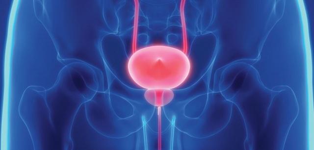 Các yếu tố nguy cơ, dấu hiệu và cách phòng tránh ung thư bàng quang - 1