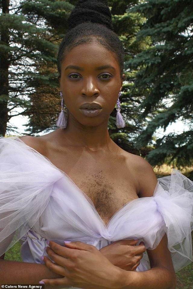 Cô gái từng tuyệt vọng vì mọc lông ở ngực học cách yêu bản thân trở lại - 1
