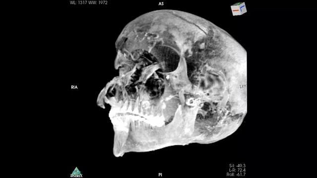 Xác ướp hé lộ pharaoh Ai Cập bị xử tử ngay trên chiến trường - 1