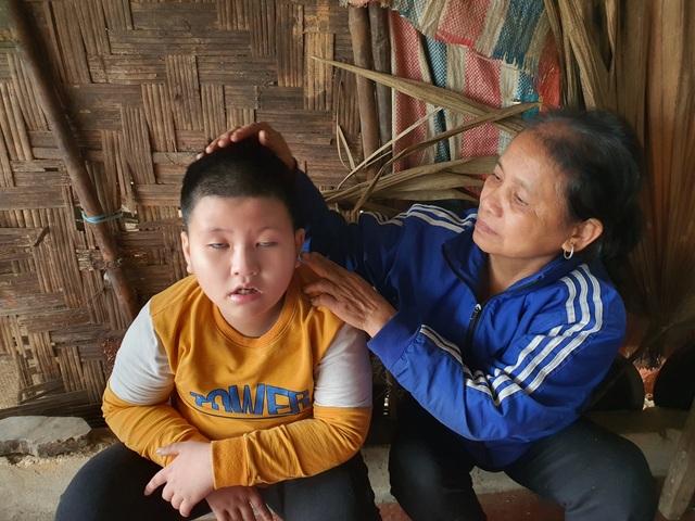 Nhói lòng cảnh 2 đứa trẻ teo não nương nhờ bà nội chăm sóc