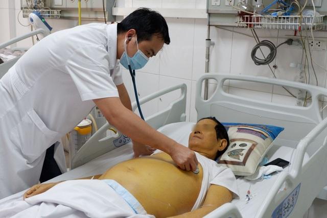 Bụng phình to, da vàng sậm vì tự ý bỏ điều trị viêm gan B - 1