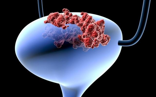 Ung thư bàng quang: Có dấu hiệu này tế bào ác tính đã di căn xa - 1