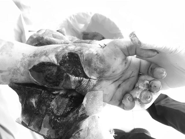 Nam công nhân bị dây kẽm siết suýt đứt cổ tay - 3