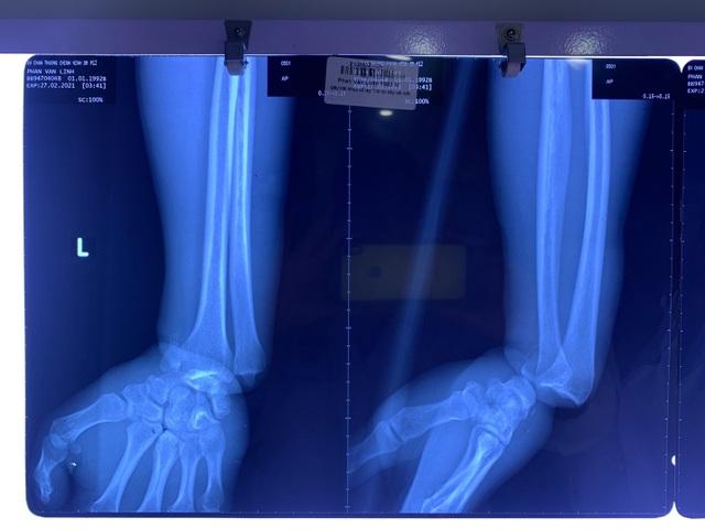 Nam công nhân bị dây kẽm siết suýt đứt cổ tay - 2