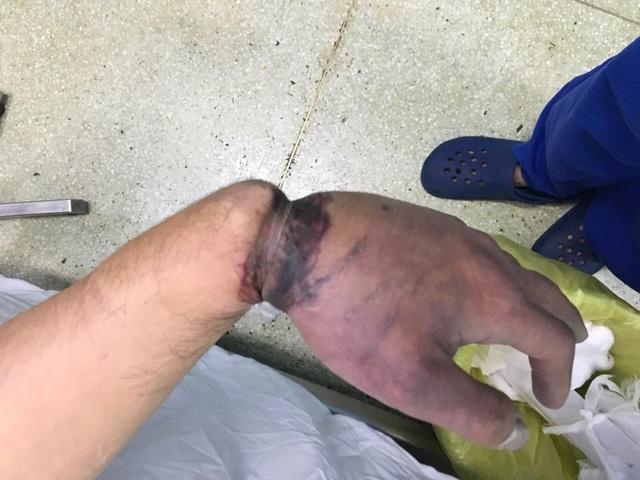 Nam công nhân bị dây kẽm siết suýt đứt cổ tay - 1