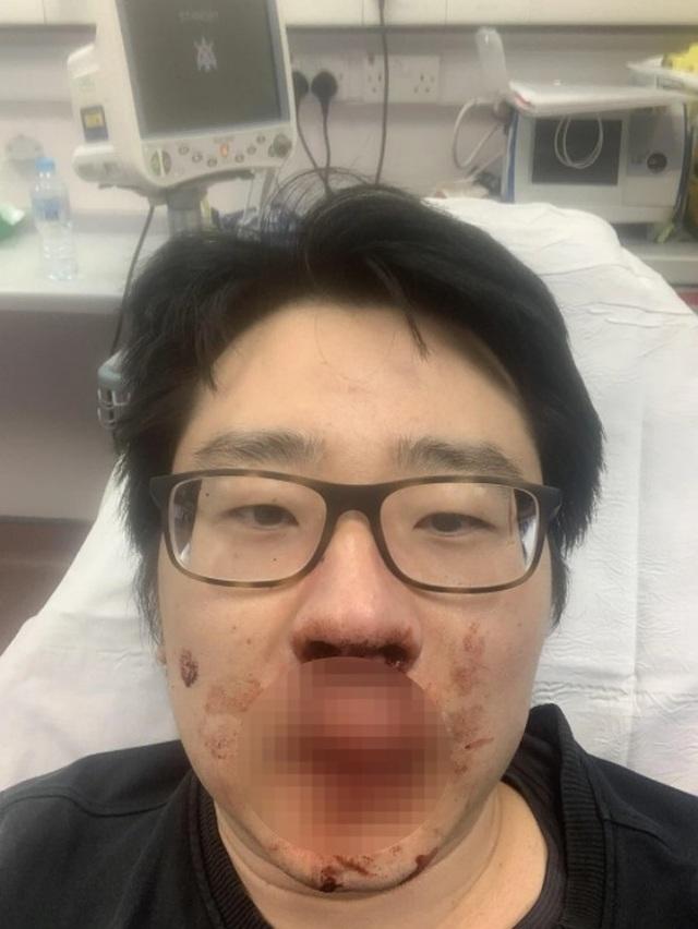 Giảng viên bị đánh chảy máu mũi ở Anh vì vi rút Trung Quốc - 1