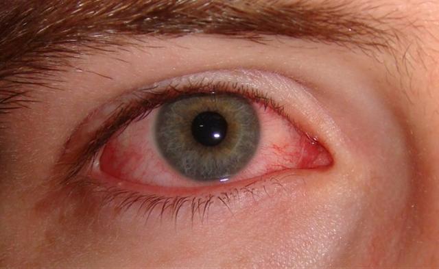 3 dấu hiệu bất thường của đôi mắt tiết lộ tình trạng sức khỏe lá gan - 2