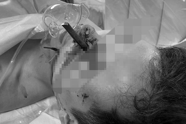 Thanh niên vào viện cấp cứu với thanh sắt dài 12cm cắm xuyên mặt - 1