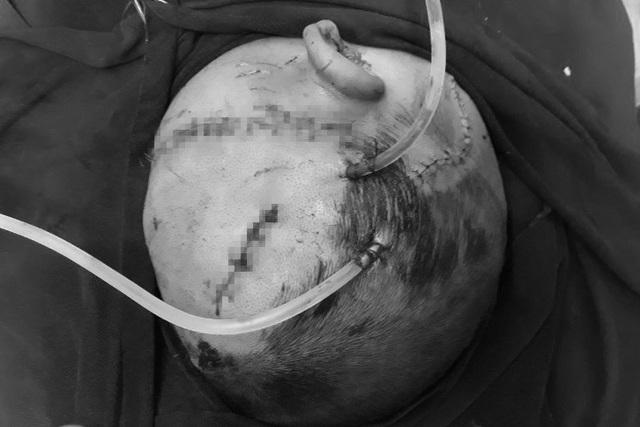 Bé trai hơn 4 tuổi bị chó nhà cắn đa chấn thương vùng đầu - 1