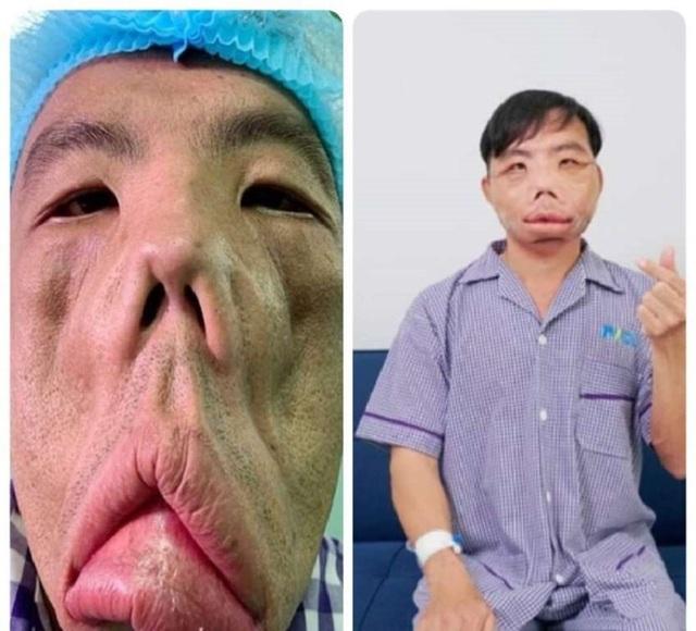 Người mang gương mặt quỷ, bí ẩn y khoa được giải mã - 2