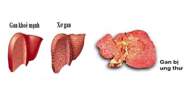 5 thủ phạm chính khiến nhiều người Việt mắc ung thư gan - 1