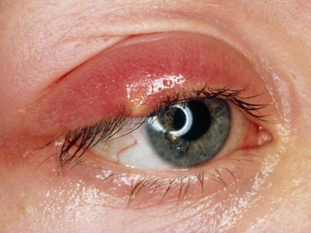 Bước tiến quan trọng trong điều trị ung thư tại mắt - 1