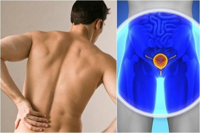 Loại ung thư ở nam giới có thể chữa khỏi nếu phát hiện sớm - 2