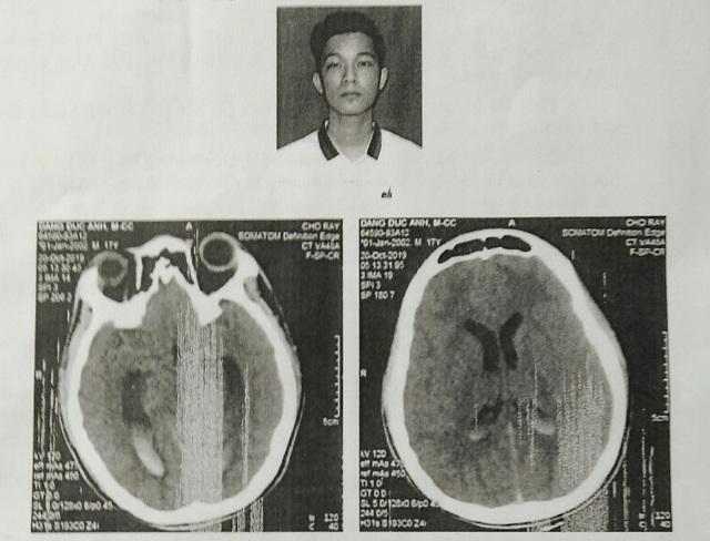 Khởi tố vụ nam sinh bị đánh chấn thương sọ não tại Bạc Liêu - 2
