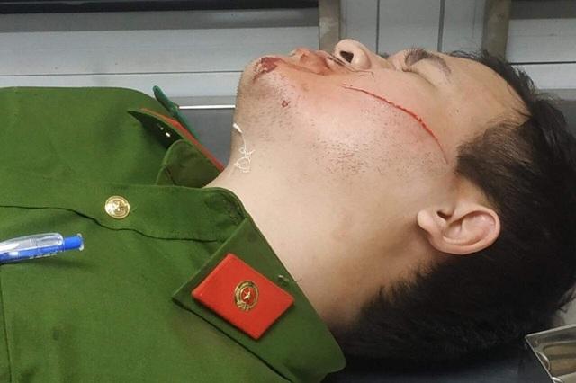 Can ngăn kẻ dọa giết người, 2 chiến sĩ công an bị chém - 1