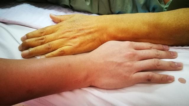 8 dấu hiệu chỉ điểm bệnh gan được ví là kẻ giết người thầm lặng - 1