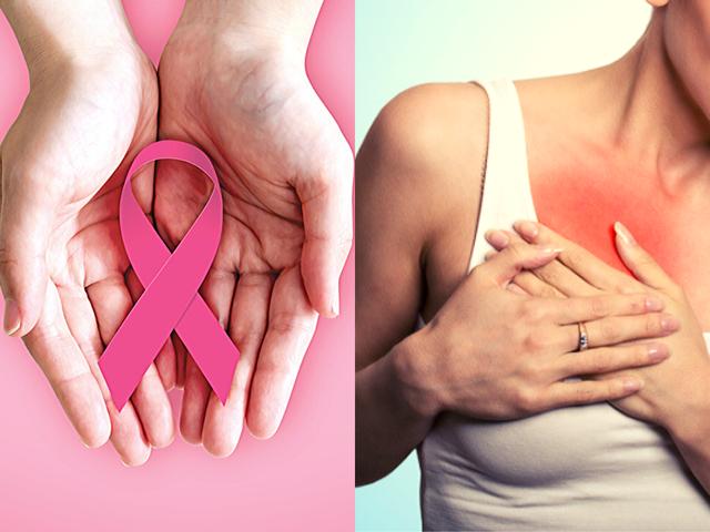 6 dấu hiệu cảnh báo 2 loại ung thư hàng đầu ở phụ nữ - 1