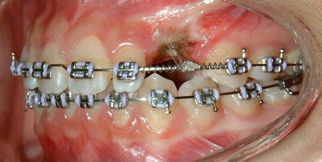 Cơn sốt Niềng răng chưa đến 10 triệu đồng? Thực hư ra sao? - 2