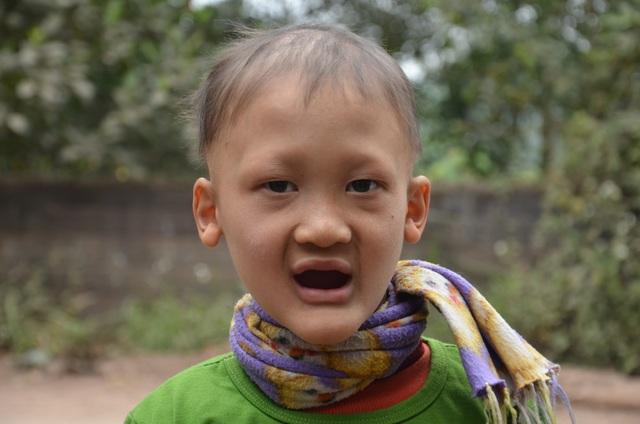 Rớt nước mắt cảnh cậu bé mồ côi mắc bệnh lạ, 7 tuổi vẫn không mọc răng - 1