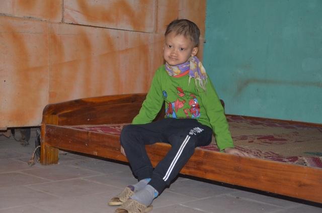Rớt nước mắt cảnh cậu bé mồ côi mắc bệnh lạ, 7 tuổi vẫn không mọc răng - 2