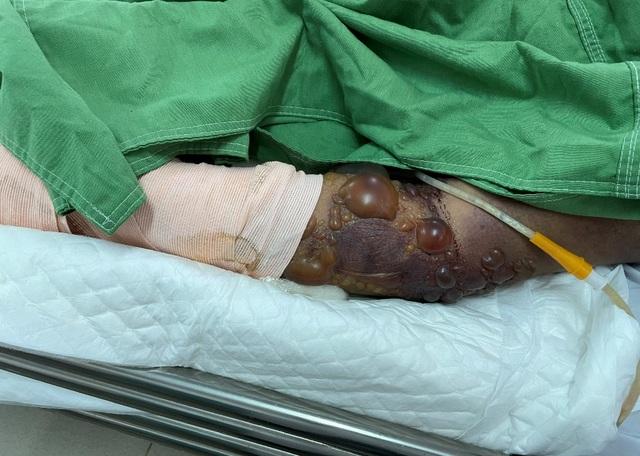 Hai nạn nhân đi cắt lá sả bị rắn cắn dẫn đến hôn mê - 1