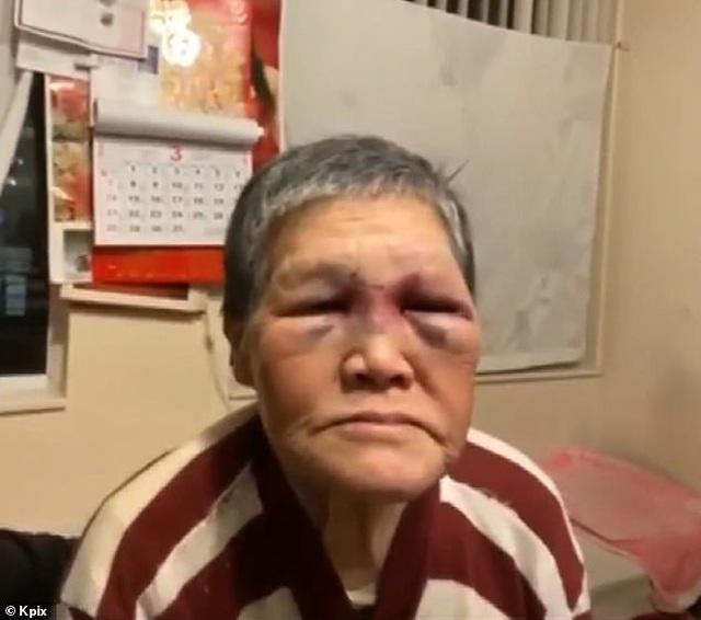 Cụ ông Mỹ gốc Việt bị đánh nhập viện được ủng hộ 215.000 USD - 2