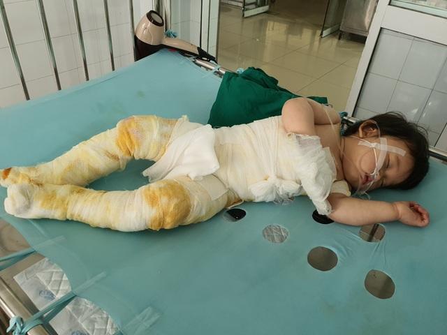 Đau nhói lòng cảnh bé gái 14 tháng tuổi ngã vào nồi nước sôi nguy kịch - 3