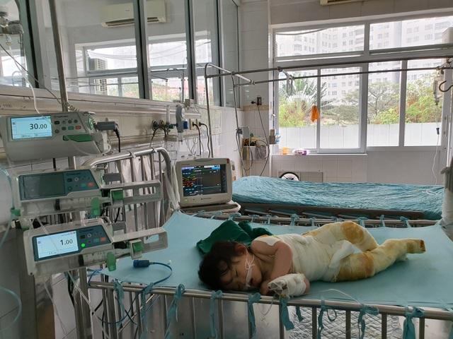 Đau nhói lòng cảnh bé gái 14 tháng tuổi ngã vào nồi nước sôi nguy kịch