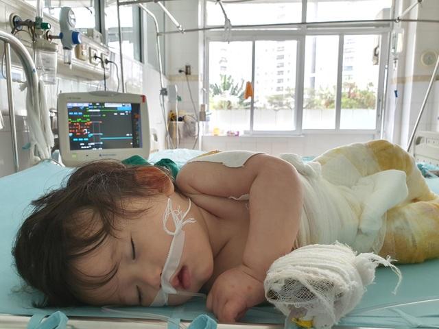 Đau nhói lòng cảnh bé gái 14 tháng tuổi ngã vào nồi nước sôi nguy kịch - 4