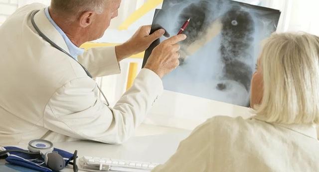 Làm sao để phục hồi phổi sau khi mắc Covid-19? - 1