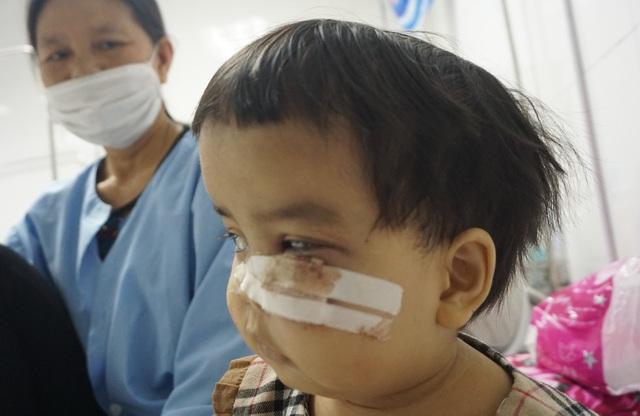 Nụ cười nhói lòng của bé gái mắc bệnh xương hóa đá hiếm gặp - 2