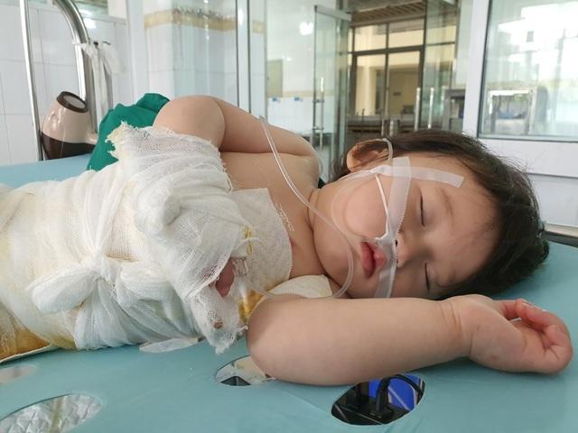 Đau nhói lòng cảnh bé gái 14 tháng tuổi ngã vào nồi nước sôi nguy kịch - 2