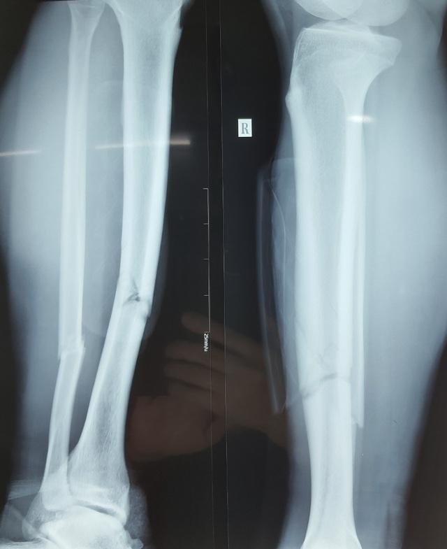 Hình ảnh chuyển ra từ phòng phẫu thuật chân gãy của cầu thủ Đỗ Hùng Dũng - 1