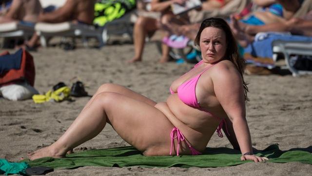 Người mẫu Chanelle Hayes cắt bớt 80% dạ dày sau khi nặng 110 kg - 3
