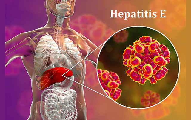 Phát hiện bệnh gan qua xét nghiệm nước bọt - 1