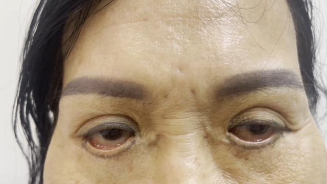 Mắt trợn ngược, sẹo chi chít như vá xe sau cắt mí - 1