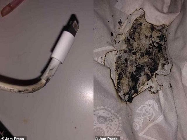 Thiếu nữ bị bỏng mặt vì iPhone bất ngờ phát nổ khi cắm sạc qua đêm - 1
