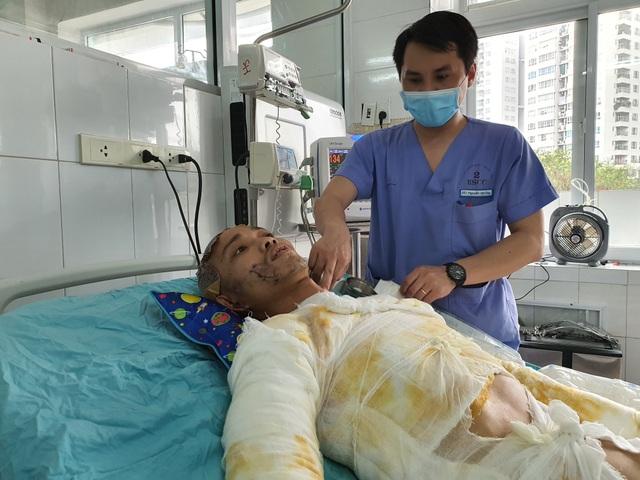 Chàng trẻ nguy kịch sau vụ tai nạn thương tâm mất nửa phần da cơ thể - 1