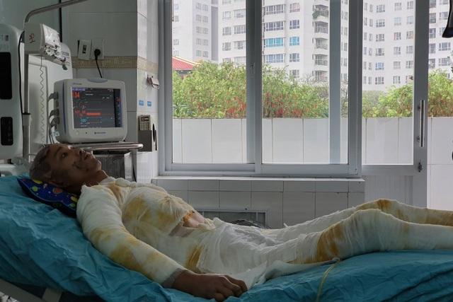 Chàng trẻ nguy kịch sau vụ tai nạn thương tâm mất nửa phần da cơ thể - 2