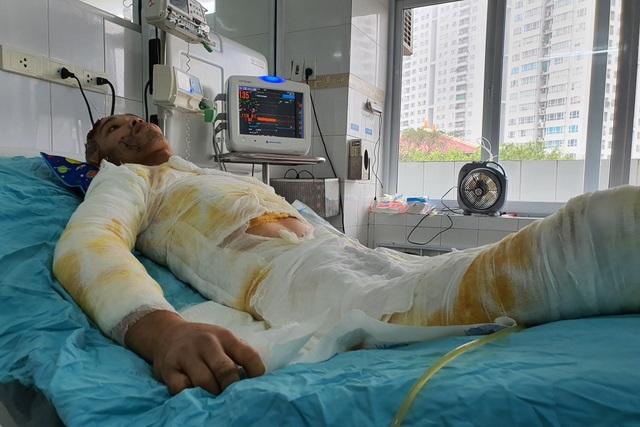 Chàng trẻ nguy kịch sau vụ tai nạn thương tâm mất nửa phần da cơ thể - 4