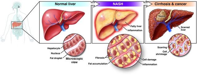 Đột phá trong xét nghiệm phát hiện bệnh gan - 1