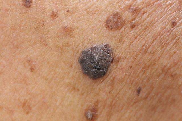 Những dấu hiệu nhận biết nốt ruồi ung thư - 1