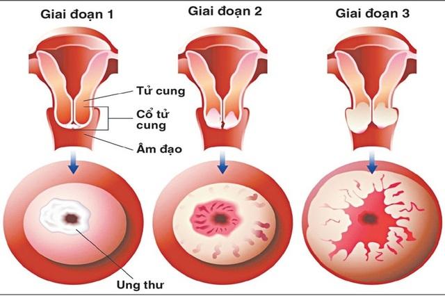 Dấu hiệu cảnh báo ung thư cổ tử cung - 1