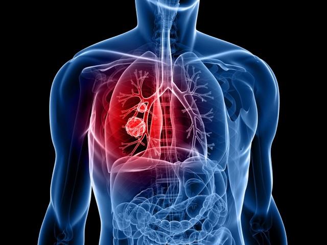 Triệu chứng của ung thư phổi là gì? - 1