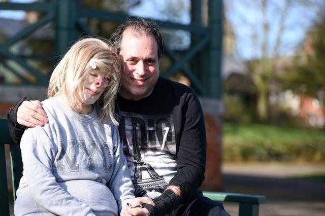 Hạnh phúc bất ngờ của cô gái từng bị bỏng đến biến dạng - 3