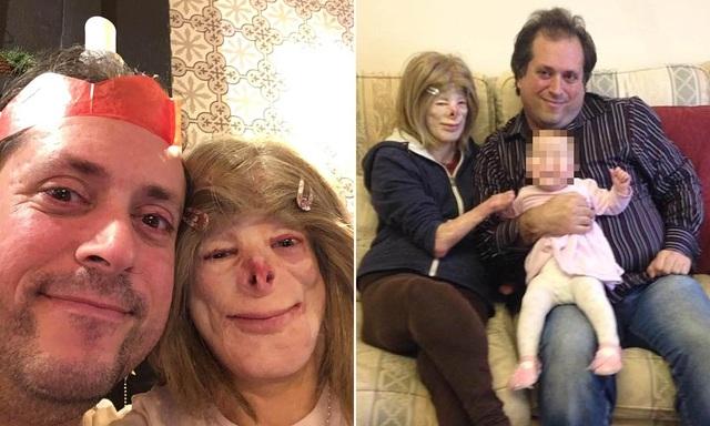 Hạnh phúc bất ngờ của cô gái từng bị bỏng đến biến dạng - 7